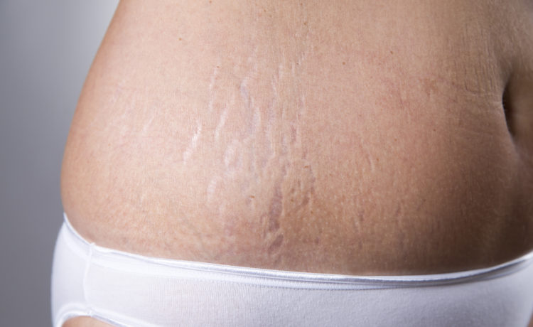 Top 15 Home Remedies To Remove Stretch Marks