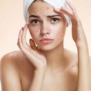 Top 10 Surprising Home Remedies For Curing Pimples Overnight