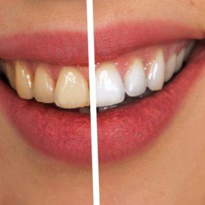 16 Incredible Ways To Whiten Teeth Naturally