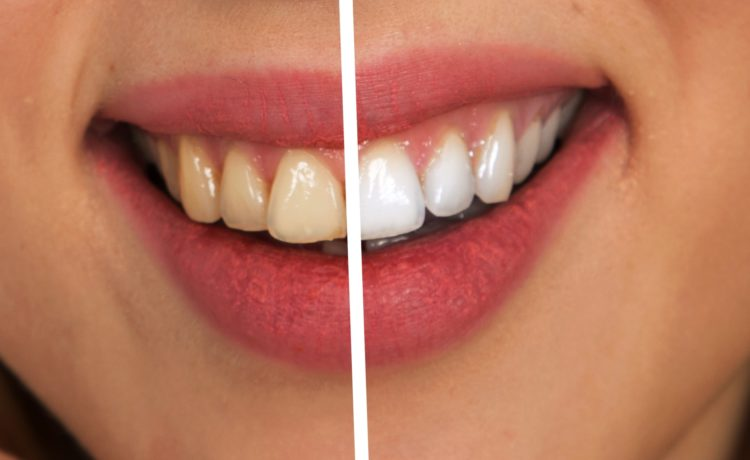 16 Incredible Ways To Whiten Teeth Naturally