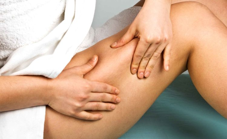 18 Simple Home Remedies To Get Rid Of Cellulite Fat