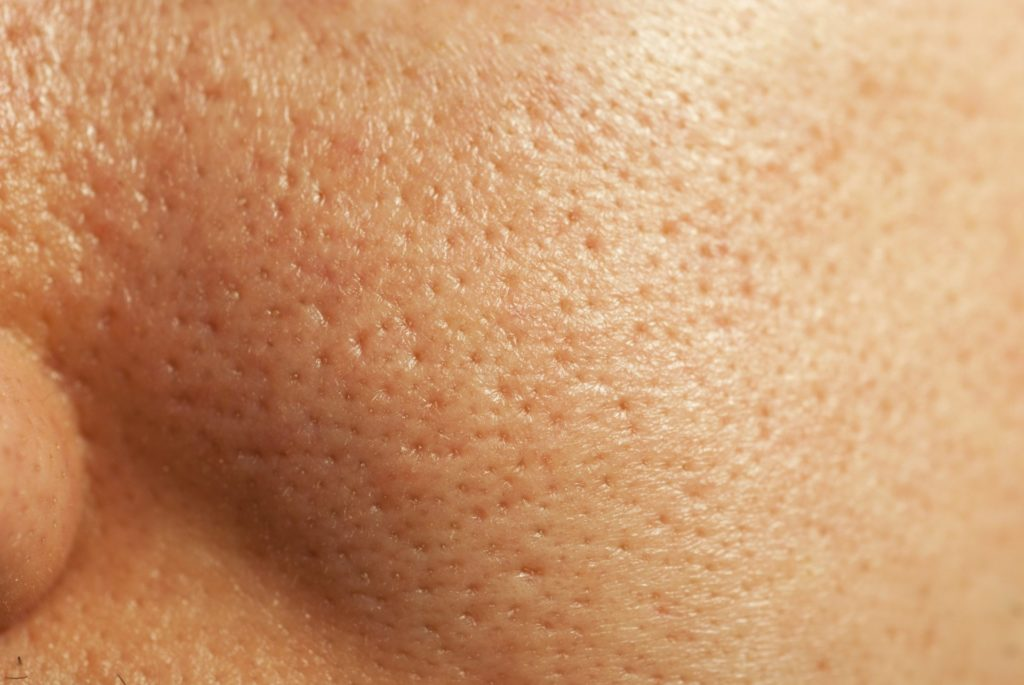 15 Best Home Remedies For Open Pores - Miss Ambivert